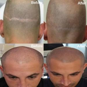 scar-repair