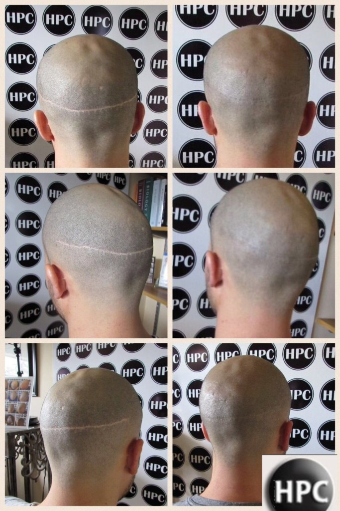 scalp-micropigmentation (2)