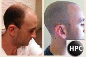 Non-Invasive Hair Loss Treatment is on The Rise