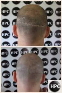 Tattoo Hairline Treatment by HPC