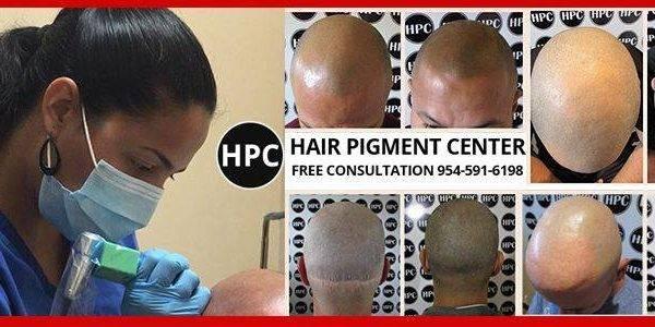Best Destination for Scalp Micropigmentation Hair Procedures and Training