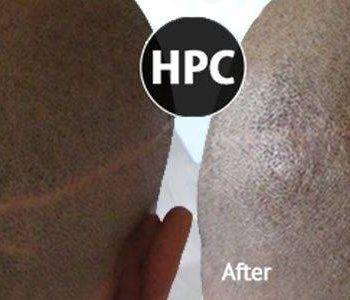 Scalp Scar Treatment