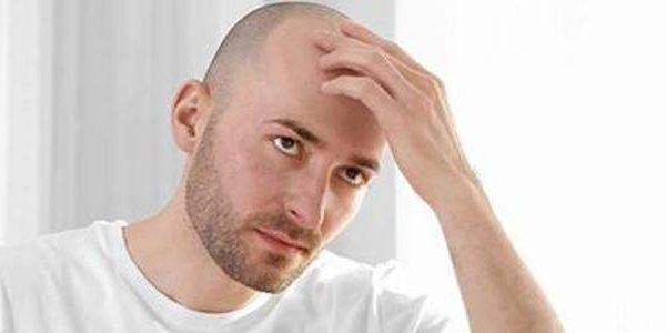 Scalp Pigmentation Instead of Hair Transplant Surgery