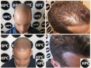 Tattooed Hair Made Easy With Scalp Micro Pigmentation