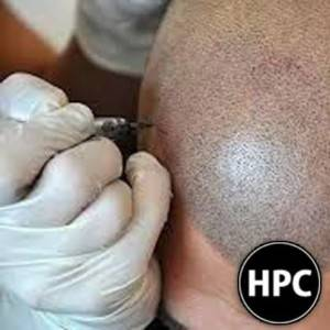 Non-Invasive Solution for Baldness: Scalp Micropigmentation