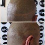 hair-transplant-strip-scar-repair