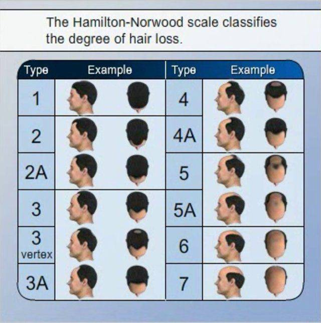 Hamilton Norwood Scale