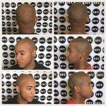 scalp-micropigmentation-florida (10)