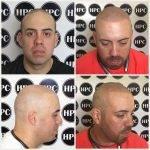 scalp-micropigmentation-florida (11)