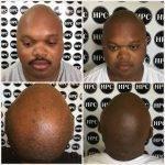 scalp-micropigmentation-florida (14)