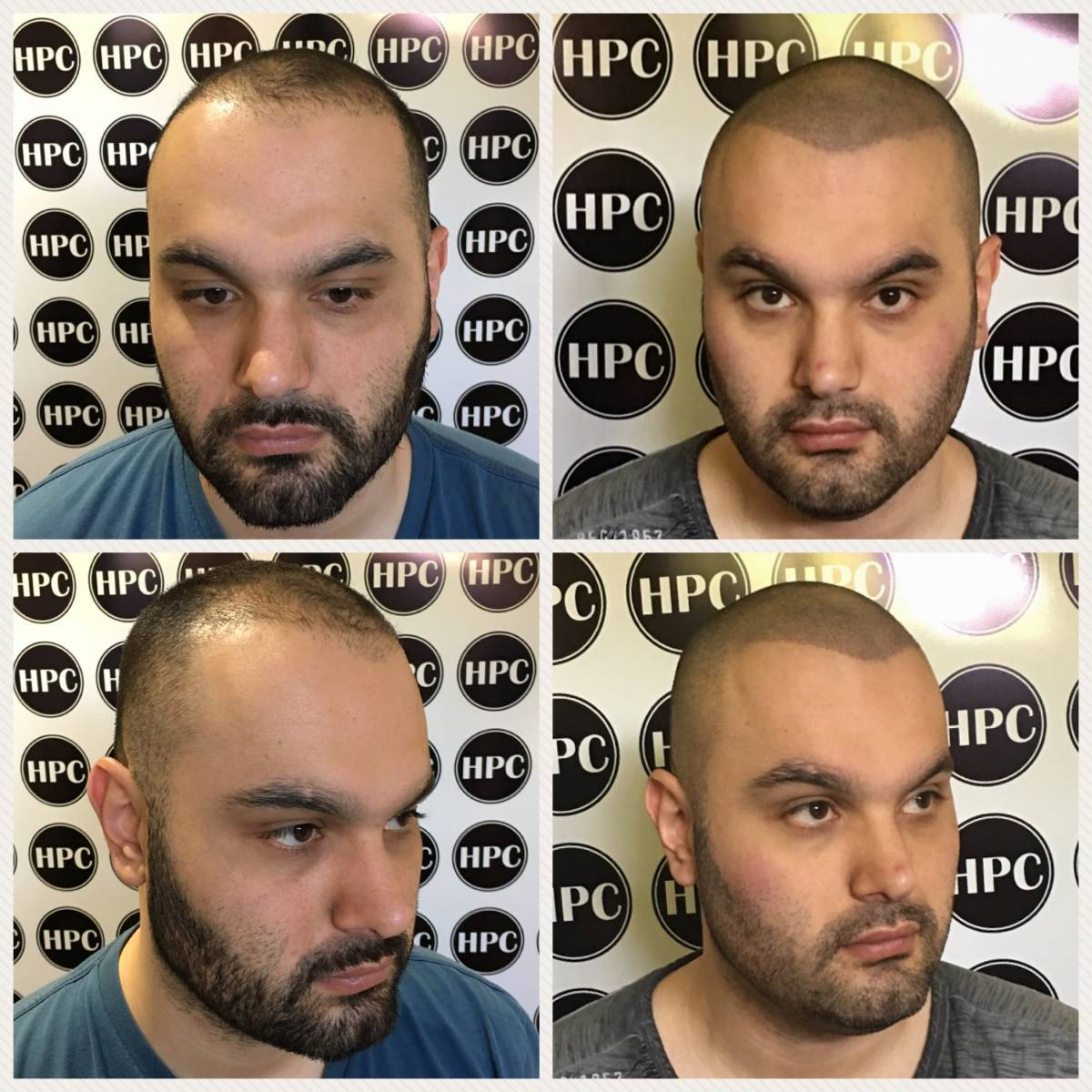 scalp-micropigmentation-10-22-15