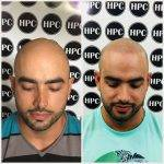 scalp-micropigmentation-florida (17)