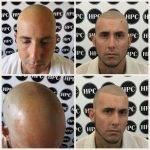 scalp-micropigmentation-florida (19)