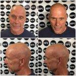 scalp-micropigmentation-florida (21)