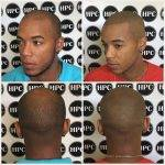 scalp-micropigmentation-florida (23)