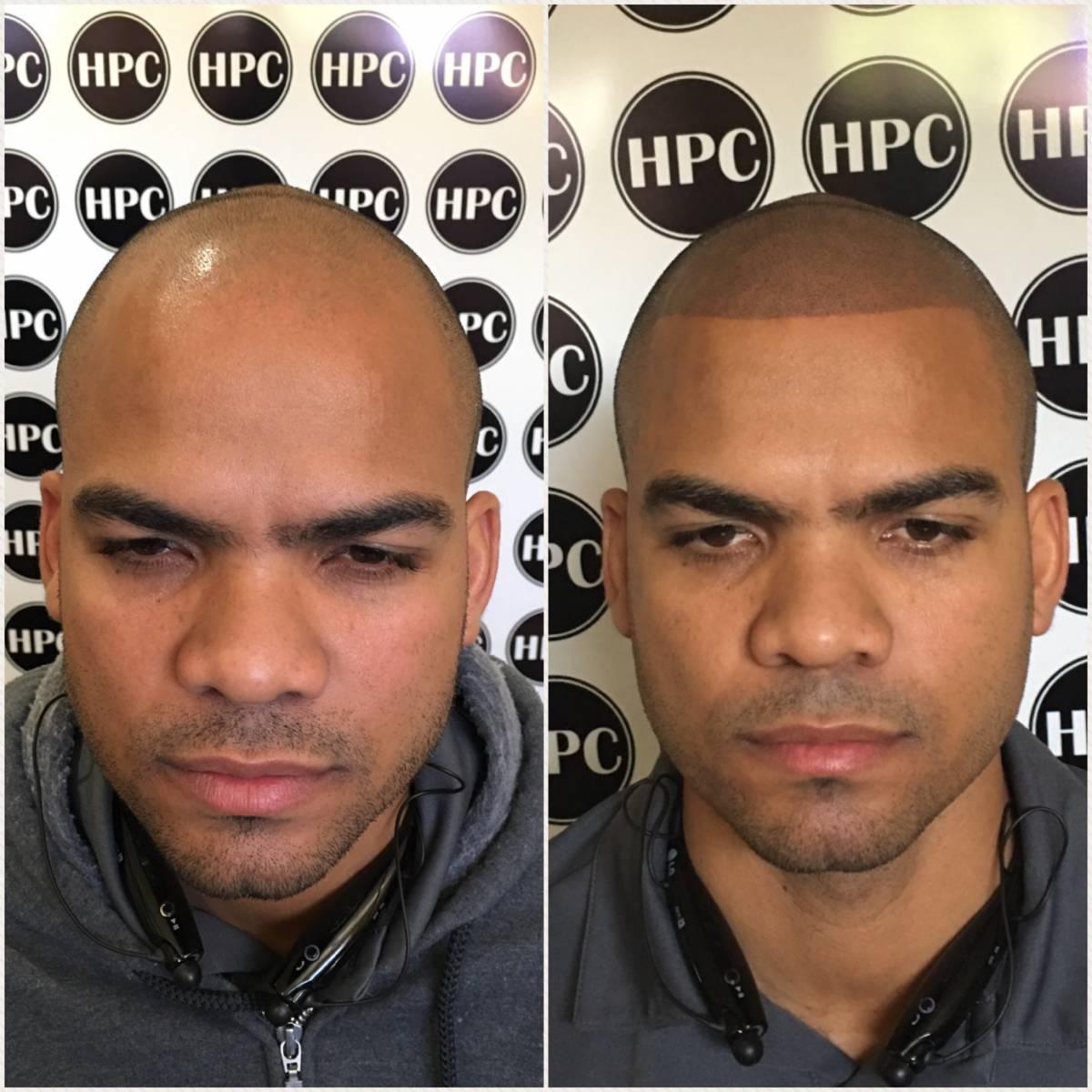 scalp-micropigmentation (4)