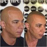 scalp-micropigmentation-florida (25)