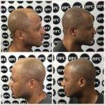 scalp-micropigmentation-florida (27)