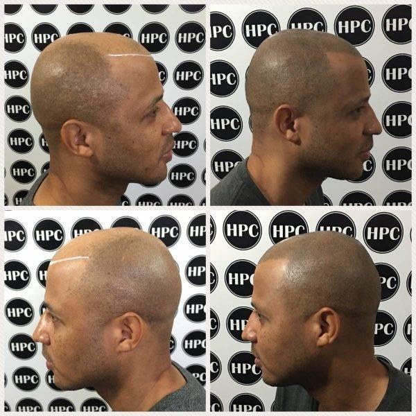 Scalp Pigmentation Client 27