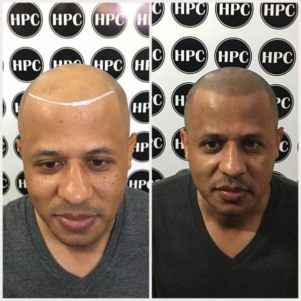 Scalp Pigmentation Client 29
