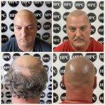 scalp-micropigmentation-florida (30)