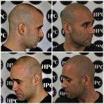 scalp-micropigmentation-florida (31)