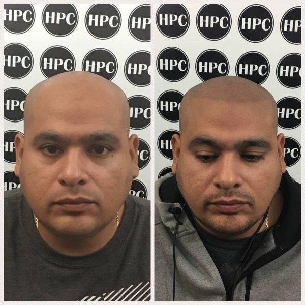 Scalp Pigmentation Client 34