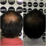 scalp-micropigmentation-florida (35)