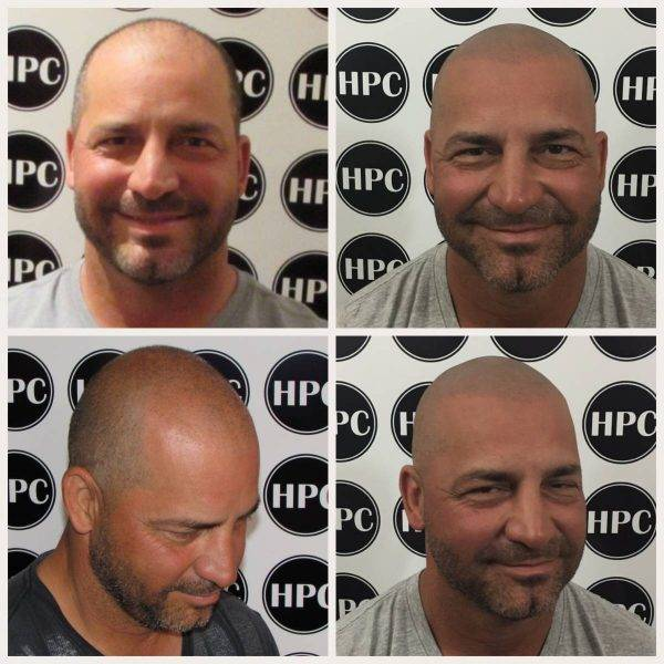 Scalp Pigmentation Client 37