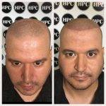 scalp-micropigmentation-florida (4)