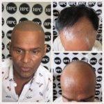 scalp-micropigmentation-florida (6)