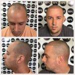 scalp-micropigmentation-florida (7)