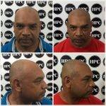 scalp-micropigmentation-florida (9)