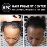 scalp-micropigmentation-florida-women (1)