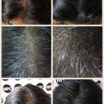 scalp-micropigmentation-florida-women (2)
