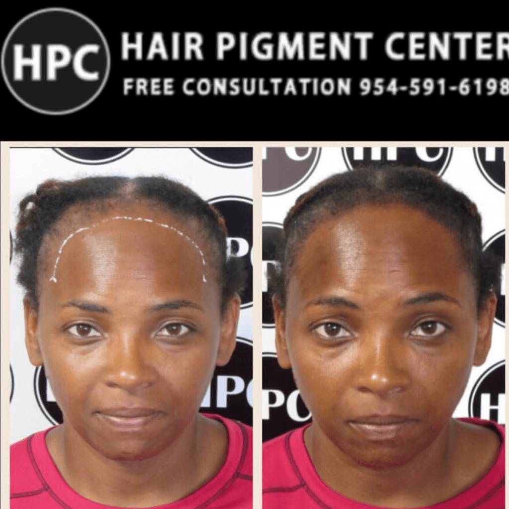 Female Scalp Pigmentation Client 07