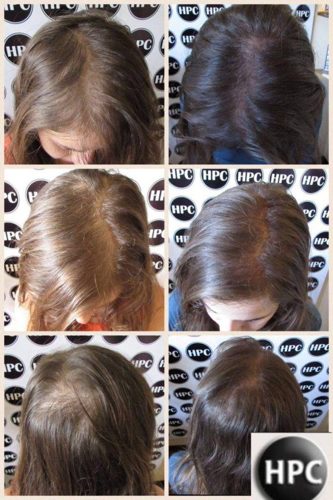 Female Scalp Pigmentation Client 06