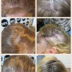 scalp-micropigmentation-florida-women (4)