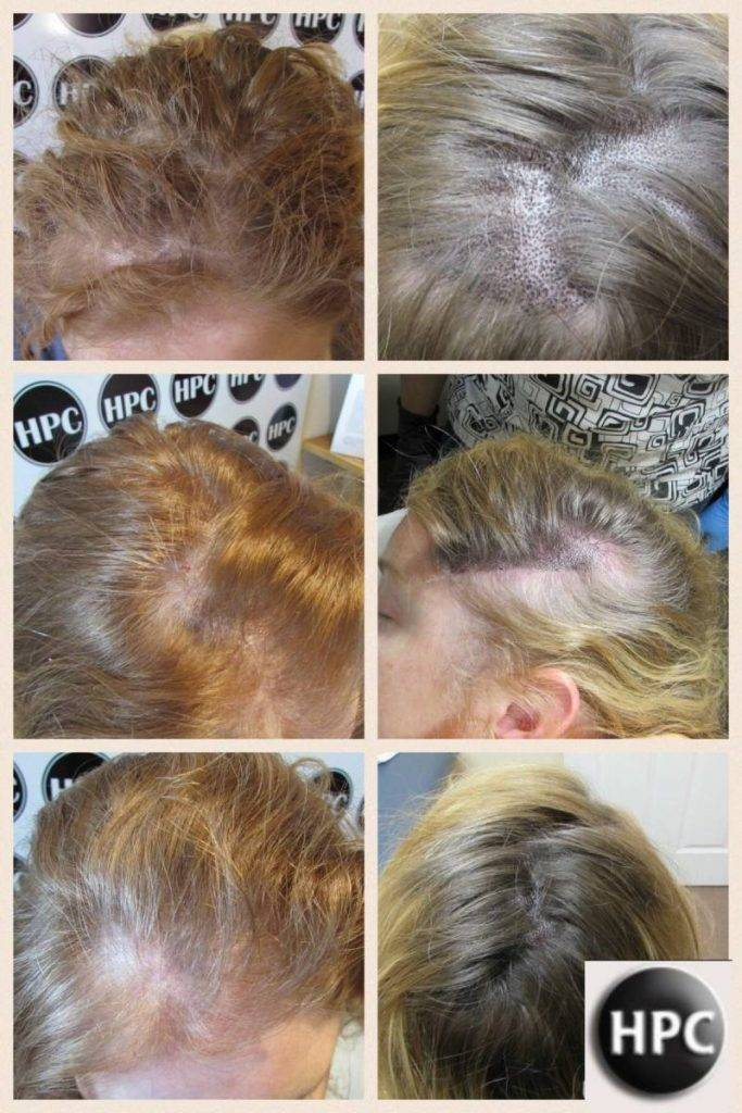 Female Scalp Pigmentation Client 08