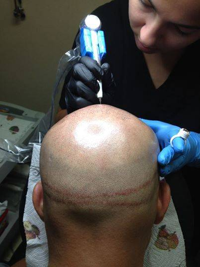 scalp-micropigmentation (1)