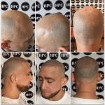 scar-repair-florida (1)