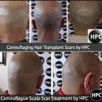 scar-repair-florida (11)