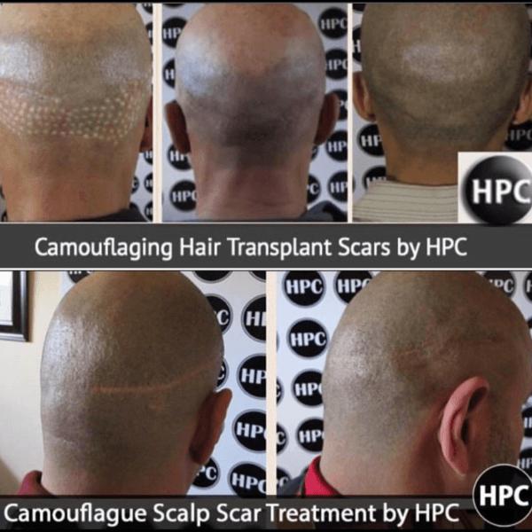 Scar Repair Client 24