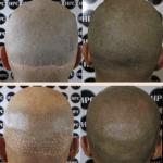 scar-repair-florida (12)