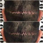 scar-repair-florida (13)