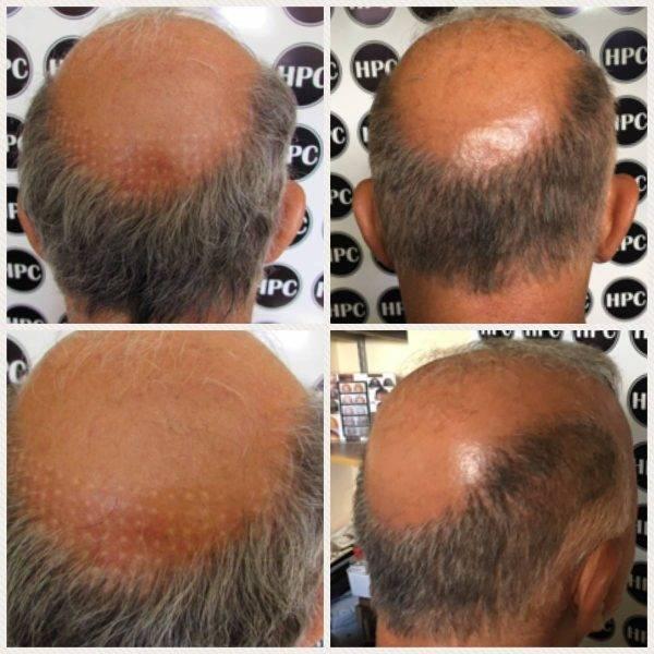 Scar Repair Client 30