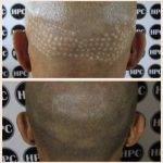 scar-repair-florida (2)