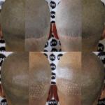scar-repair-florida (3)