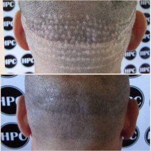 Hair Transplant Aftercare Using Scalp Pigmentation