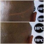 scar-repair-florida (5)